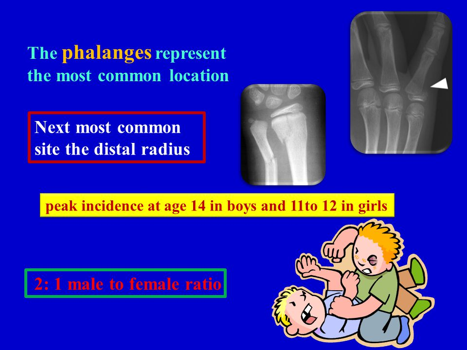 The phalanges represent the most common location Next most common site the distal radius peak incidence at age 14 in boys and 11to 12 in girls 2: 1 ma