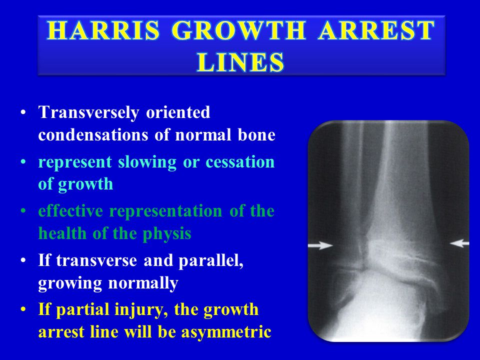 Transversely oriented condensations of normal bone represent slowing or cessation of growth effective representation of the health of the physis If tr
