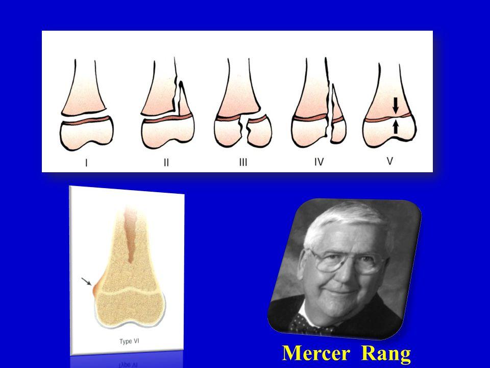 Mercer Rang