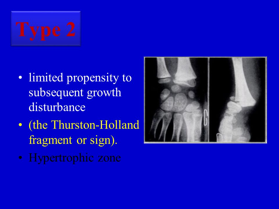 Type 2 limited propensity to subsequent growth disturbance (the Thurston-Holland fragment or sign).