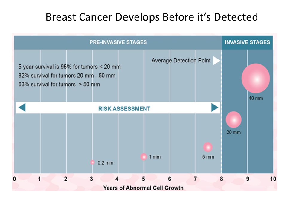 Breast Cancer Develops Before it's Detected