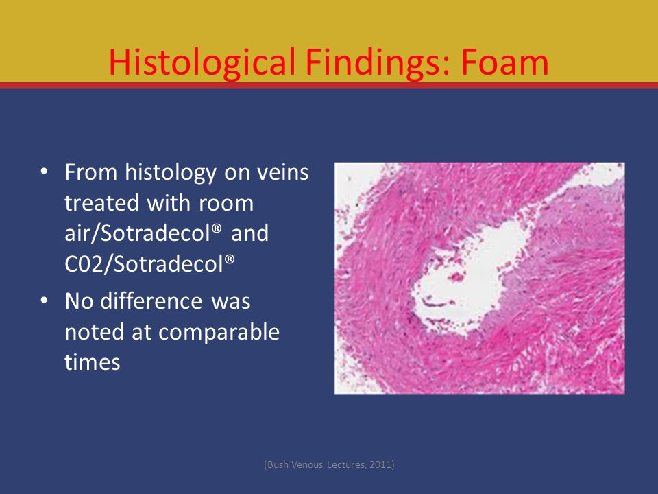 Histological Findings: Foam From histology on veins treated with room air/Sotradecol® and C02/Sotradecol® No difference was noted at comparable times (Bush Venous Lectures, 2011)
