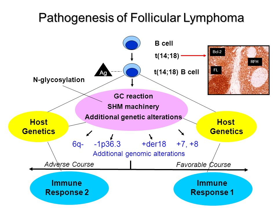 Pathogenesis of Follicular Lymphoma t(14;18) t(14;18) B cell GC reaction SHM machinery Additional genetic alterations 6q- -1p36.3 +der18 +7, +8 Additi