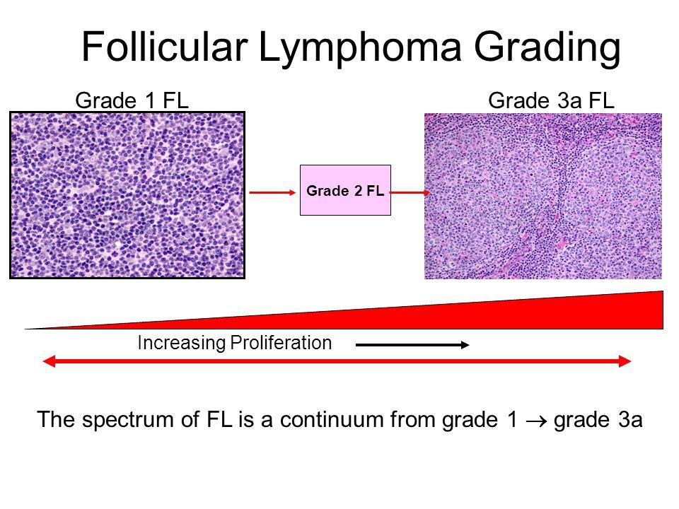 Follicular Lymphoma Grading Grade 1 FLGrade 3a FL Grade 2 FL The spectrum of FL is a continuum from grade 1  grade 3a Increasing Proliferation