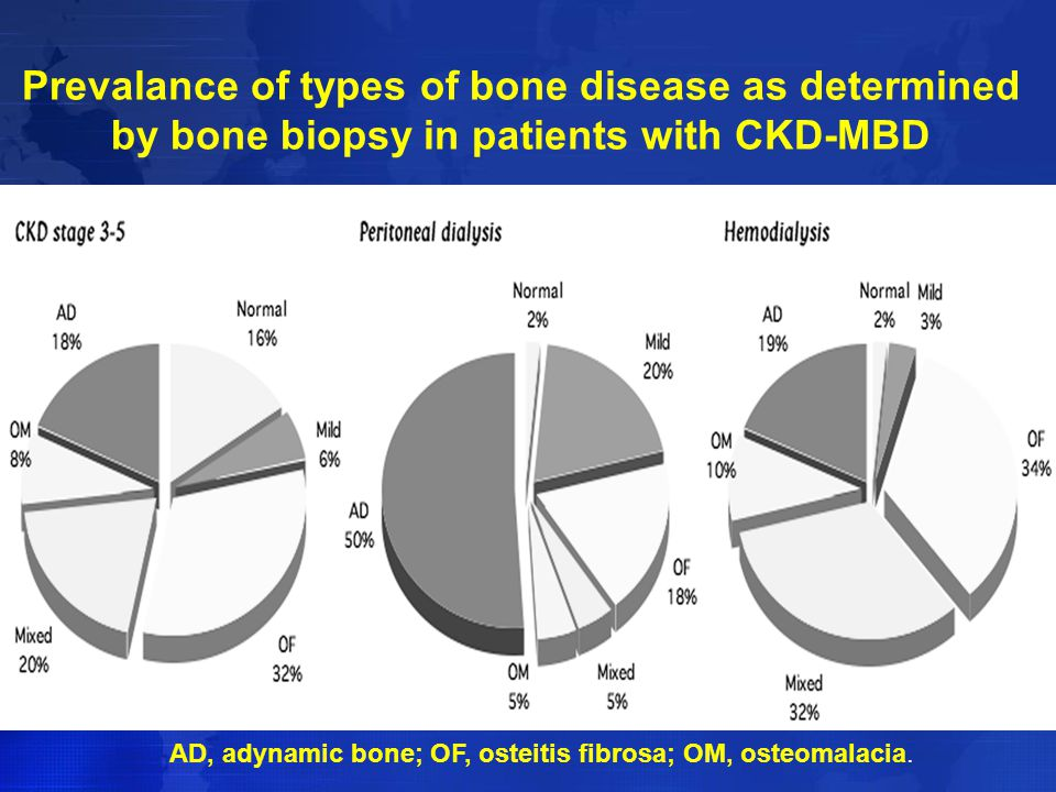 Prevalance of types of bone disease as determined by bone biopsy in patients with CKD-MBD AD, adynamic bone; OF, osteitis fibrosa; OM, osteomalacia.