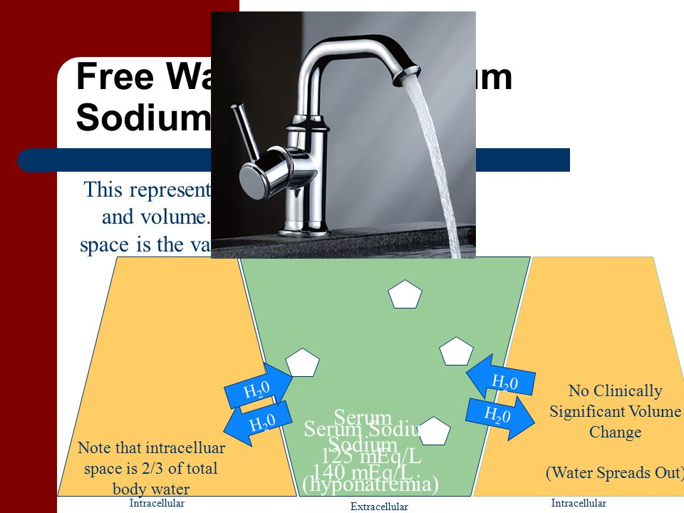 Free Water Rules Serum Sodium Intracellular Extracellular Serum Sodium 125 mEq/L (hyponatremia) Serum Sodium 140 mEq/L This represents normal sodium and volume.