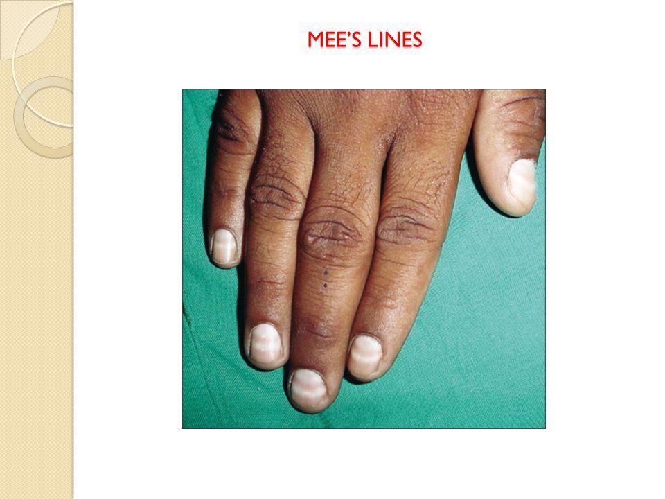 MEE'S LINES MEE'S LINES