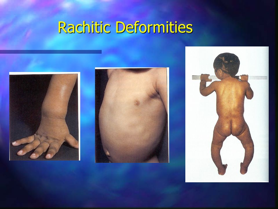 Rachitic Deformities
