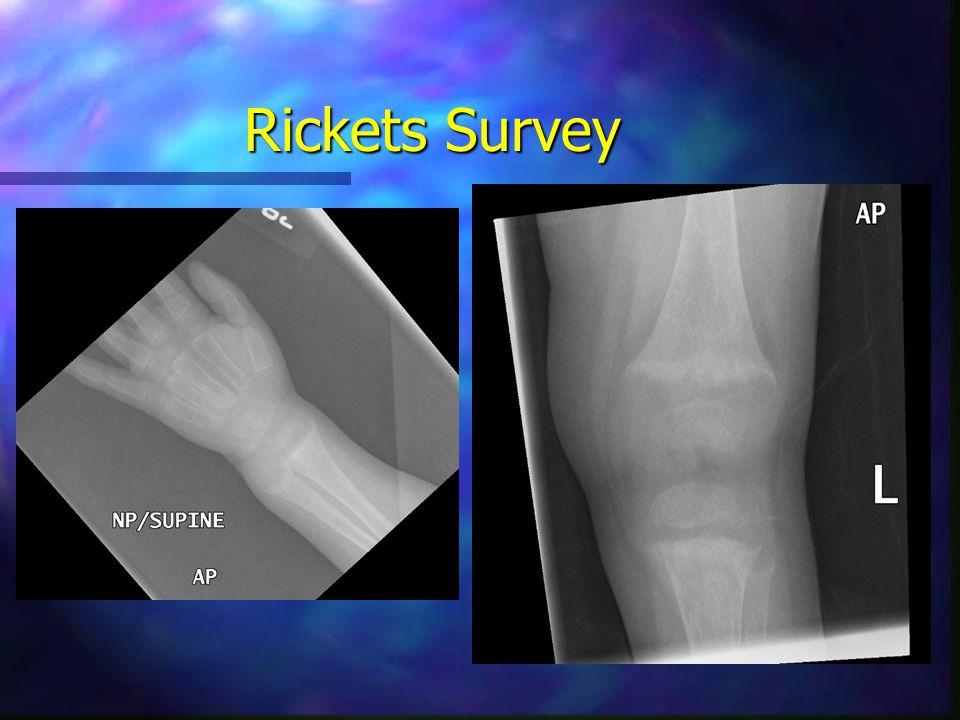 Rickets Survey