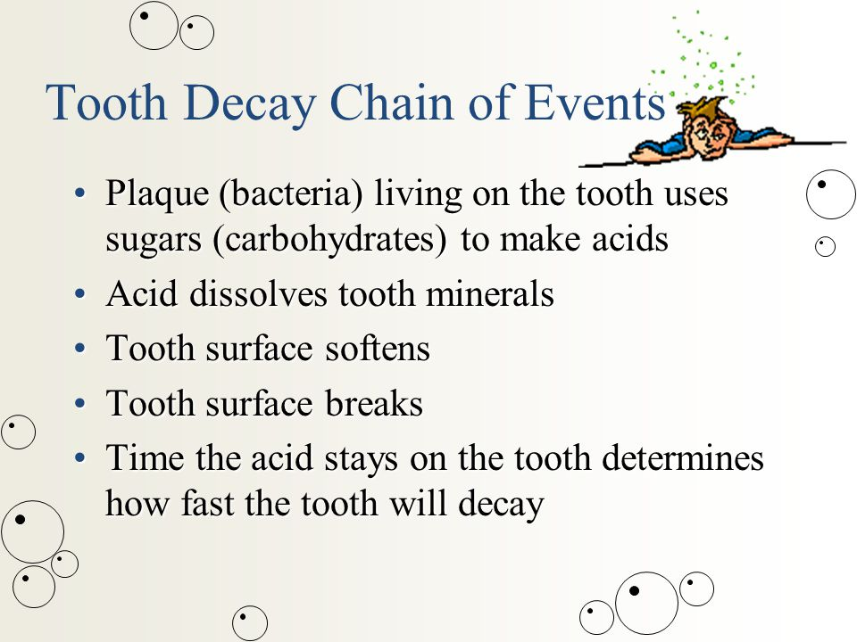 Tooth Decay Chain of Events Plaque (bacteria) living on the tooth uses sugars (carbohydrates) to make acidsPlaque (bacteria) living on the tooth uses sugars (carbohydrates) to make acids Acid dissolves tooth mineralsAcid dissolves tooth minerals Tooth surface softensTooth surface softens Tooth surface breaksTooth surface breaks Time the acid stays on the tooth determines how fast the tooth will decayTime the acid stays on the tooth determines how fast the tooth will decay