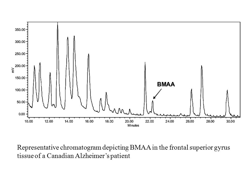 Representative chromatogram depicting BMAA in the frontal superior gyrus tissue of a Canadian Alzheimer's patient