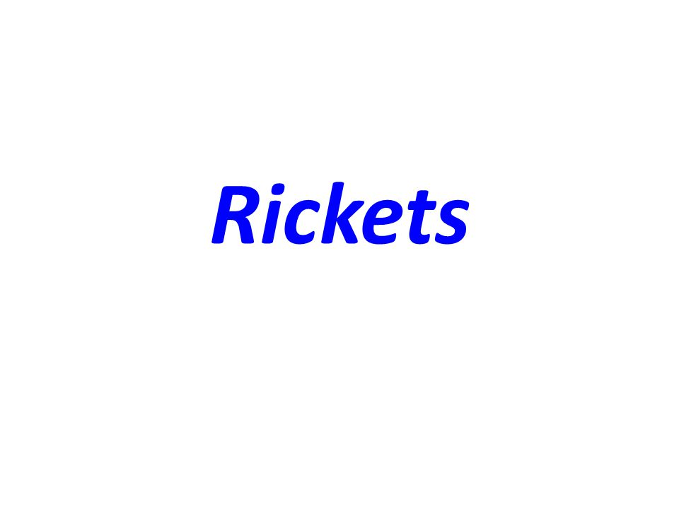 Definition of Rickets Rickets, a disease of growing bone, occurs in children only before fusion of the epiphyses, and is due to unmineralized matrix at the growth plates.