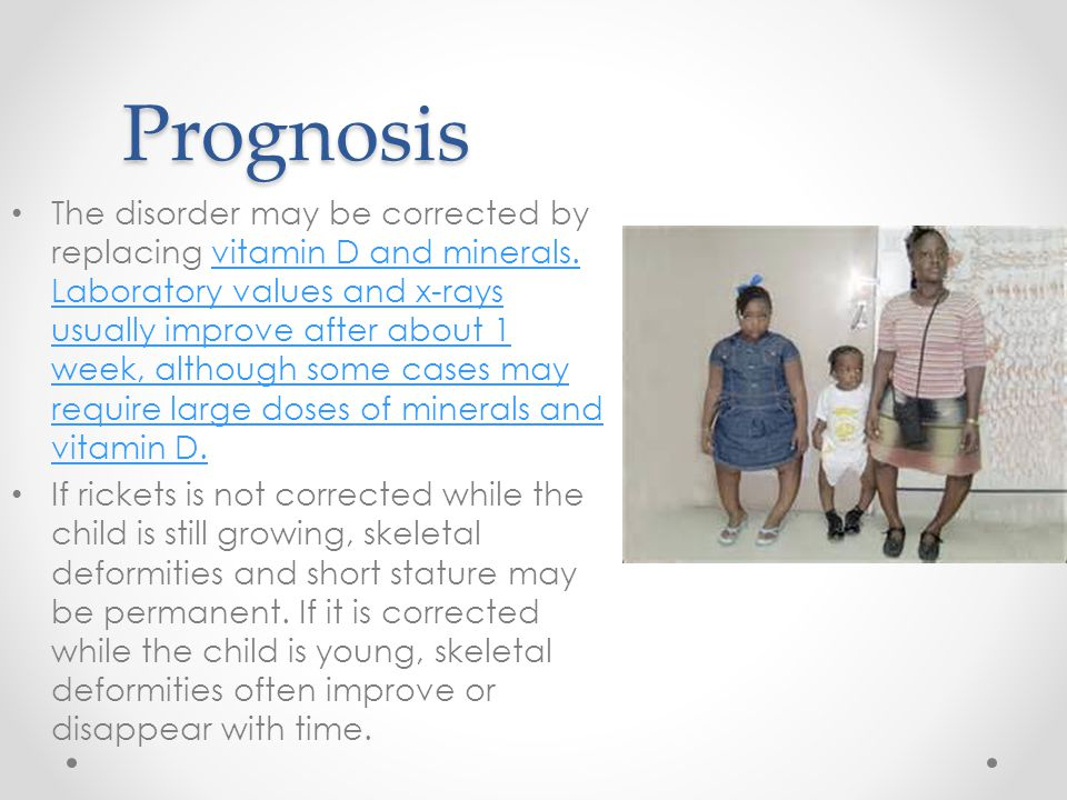 Prognosis The disorder may be corrected by replacing vitamin D and minerals.