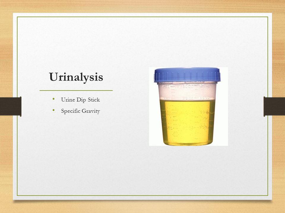Urinalysis Urine Dip Stick Specific Gravity