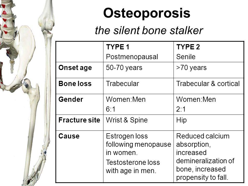 Osteoporosis the silent bone stalker TYPE 1 Postmenopausal TYPE 2 Senile Onset age50-70 years>70 years Bone lossTrabecularTrabecular & cortical GenderWomen:Men 6:1 Women:Men 2:1 Fracture siteWrist & SpineHip CauseEstrogen loss following menopause in women.