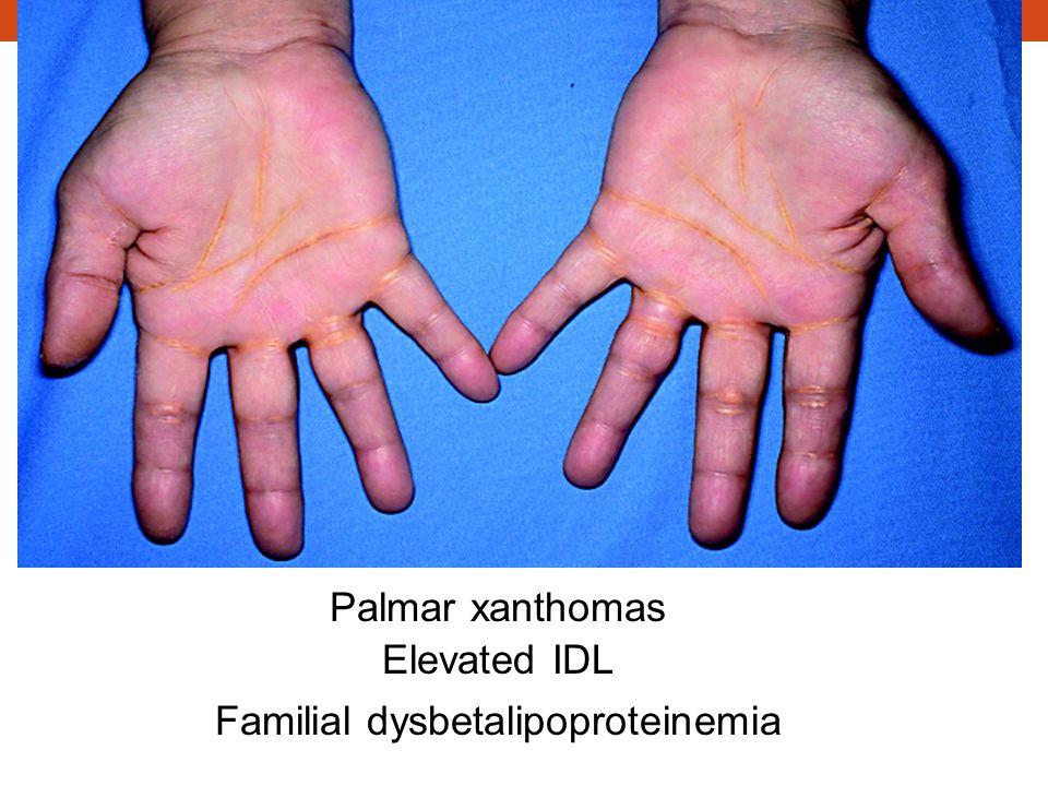 Palmar xanthomas Elevated IDL Familial dysbetalipoproteinemia
