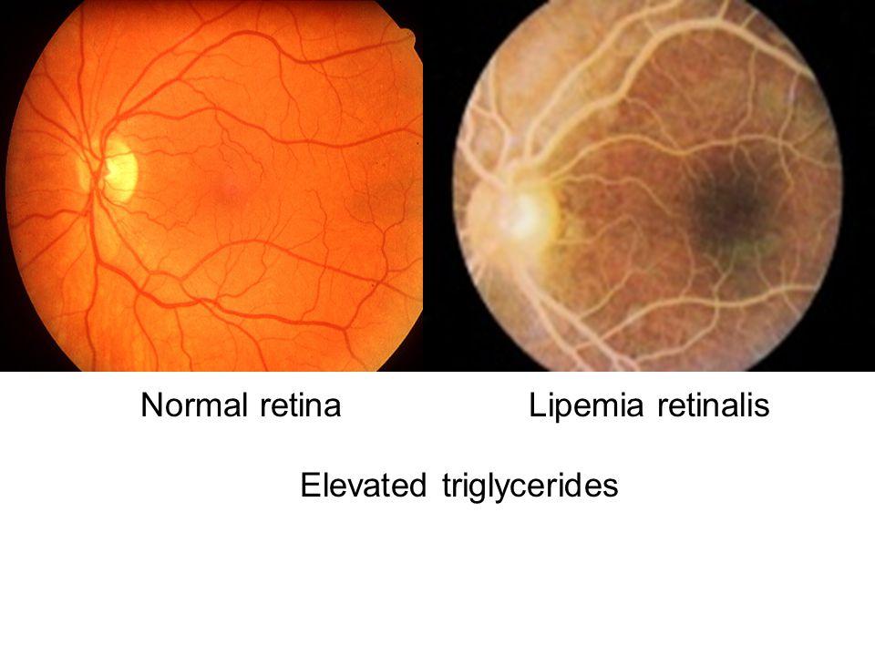 Normal retinaLipemia retinalis Elevated triglycerides