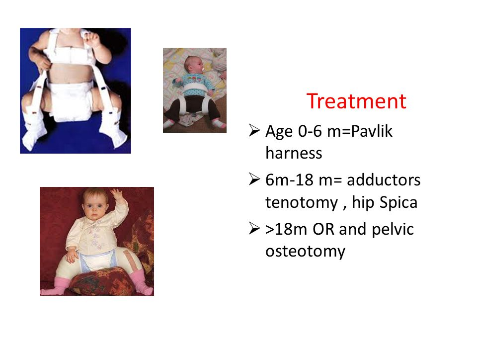 Treatment  Age 0-6 m=Pavlik harness  6m-18 m= adductors tenotomy, hip Spica  >18m OR and pelvic osteotomy