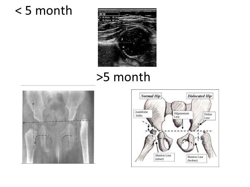 5 month
