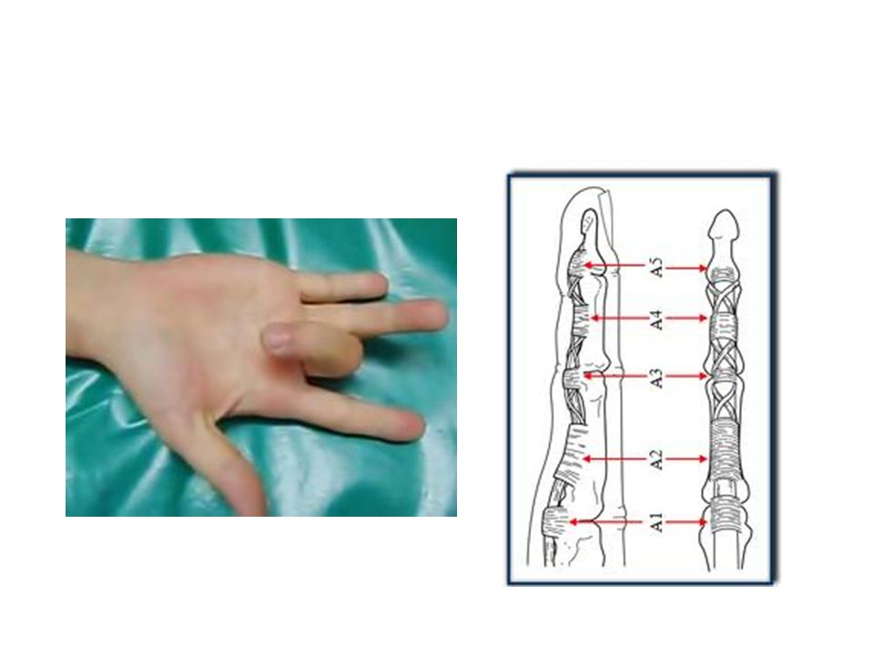 9- What is True of Sudeck s atrophy of hand: a.Hand is painful and swollen.