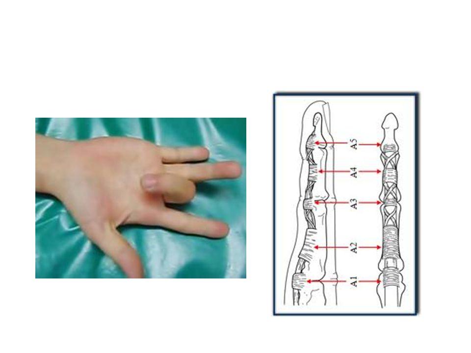 Triggering thumb or finger Called stenosing tenosynovitis.