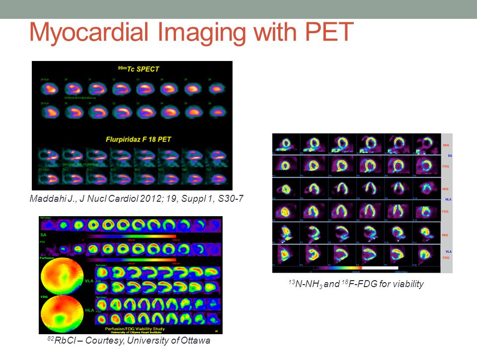 Myocardial Imaging with PET Maddahi J., J Nucl Cardiol 2012; 19, Suppl 1, S30-7 13 N-NH 3 and 18 F-FDG for viability 82 RbCl – Courtesy, University of