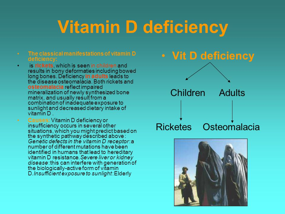 Vitamin D deficiency The classical manifestations of vitamin D deficiency: is rickets, which is seen in children and results in bony deformaties including bowed long bones.