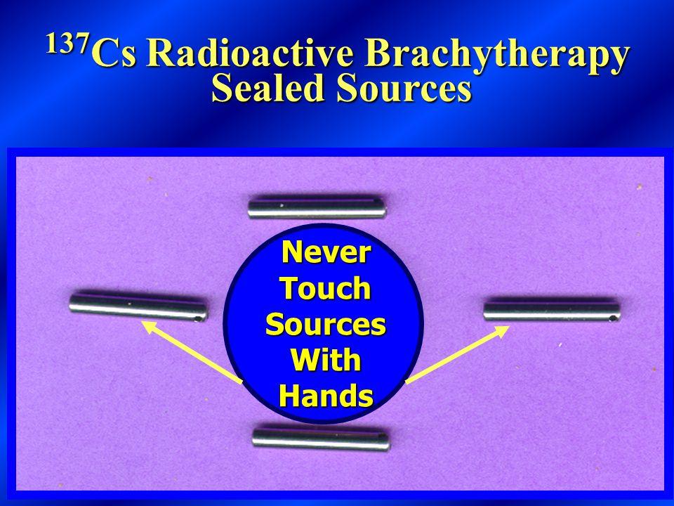 Cesium-137 GYN Intracavitary Radiation Implant