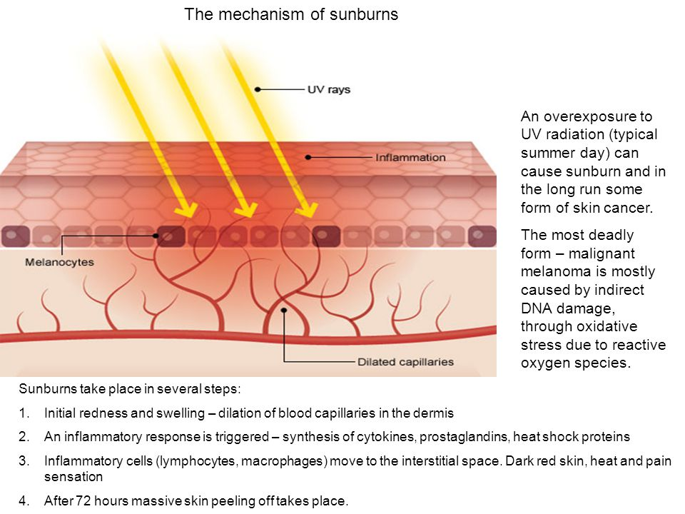 The mechanism of sunburns Sunburns take place in several steps: 1.Initial redness and swelling – dilation of blood capillaries in the dermis 2.An infl