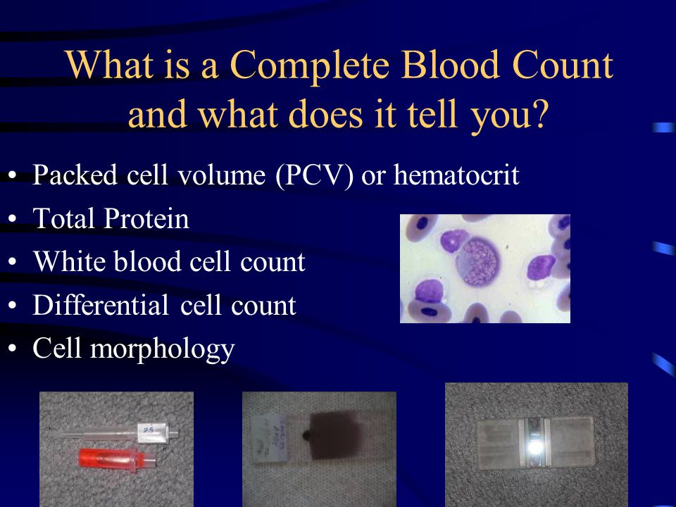 What is a Complete Blood Count and what does it tell you.