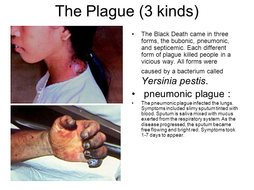Prevention of the plague There is NO VACCINE Avoid contact with sick or dead animals.