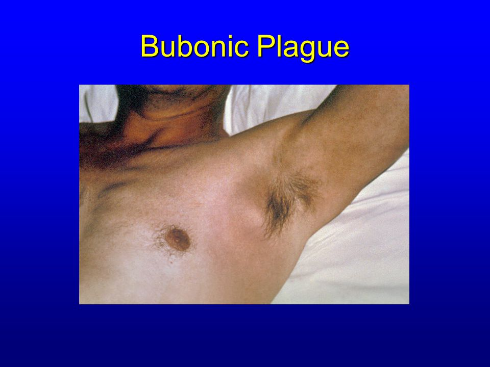 Pneumonic Plague Incubation: 2 to 4 days (range 1 to 6 days)Incubation: 2 to 4 days (range 1 to 6 days) SymptomsSymptoms –Acute fever, chills, malaise, myalgias –Productive cough –Watery mucoid sputum, may be bloody –Associated chest pain, increasing dyspnea