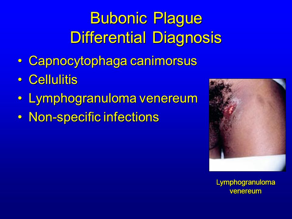 Bubonic Plague Differential Diagnosis Streptococcal or staphylococcal adenitis (Staphylococcal aureus, Staphylococcal pyogenes) Purulent/ inflamed lesion often distal to nodes Purulent/ inflamed lesion often distal to nodes Involved nodes more likely to be fluctuant Involved nodes more likely to be fluctuant Ascending lymphangitis or cellulitis may be present Ascending lymphangitis or cellulitis may be present Tularemia (Francisella tularensis) Ulcer or pustule distal to nodes Ulcer or pustule distal to nodes Rarely as fulminant as in plague Rarely as fulminant as in plague Systemic toxicity uncommon Systemic toxicity uncommon Cat scratch disease (B.