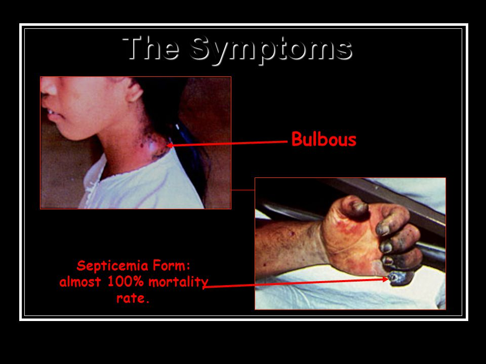 Symptoms of the Plague Infection spread to everyone who had intercourse (came into contact) with the diseased Pain throughout whole body Boils on thig