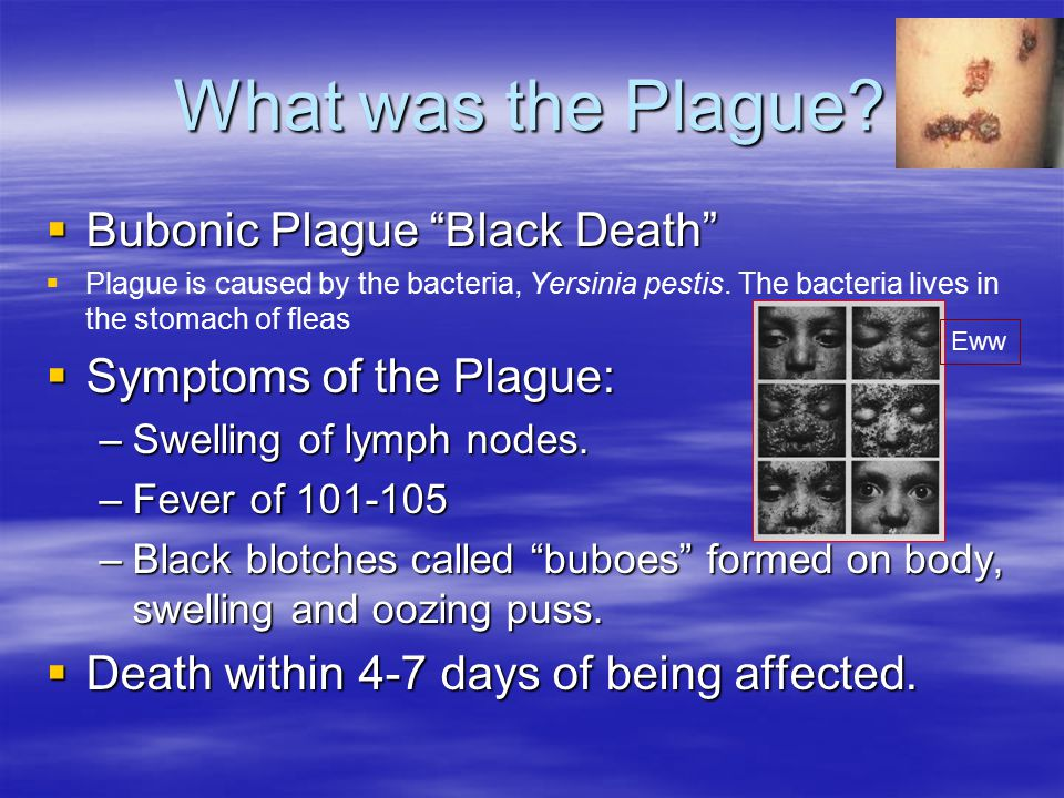 What was the Plague.