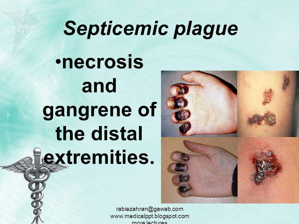 rabiezahran@gawab.com www.medicalppt.blogspot.com more lectures Physical Septicemic plague toxic appearance tachycardia, tachypnea, and hypotension.