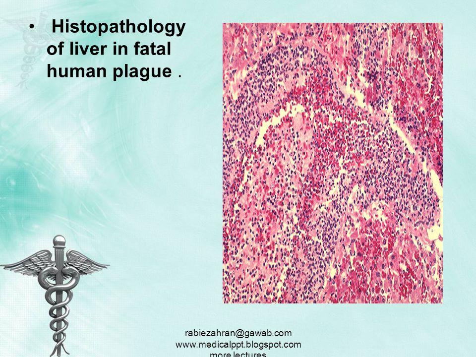 rabiezahran@gawab.com www.medicalppt.blogspot.com more lectures Histopathology of lymph node showing medullary necrosis and Yersinia pestis, the plague bacillus