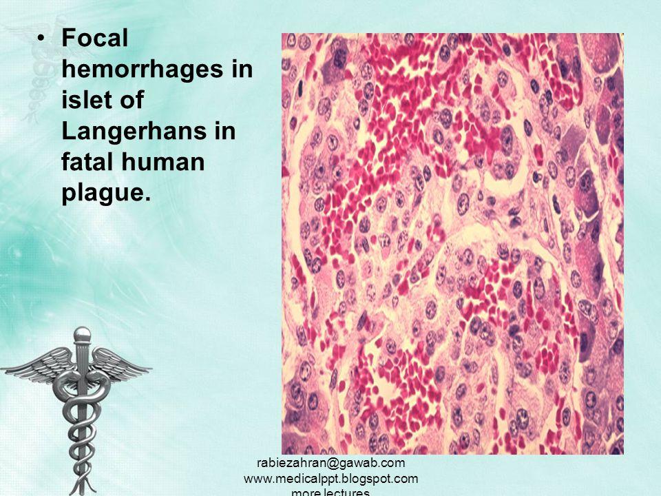 rabiezahran@gawab.com www.medicalppt.blogspot.com more lectures Histopathology of liver in fatal human plague.