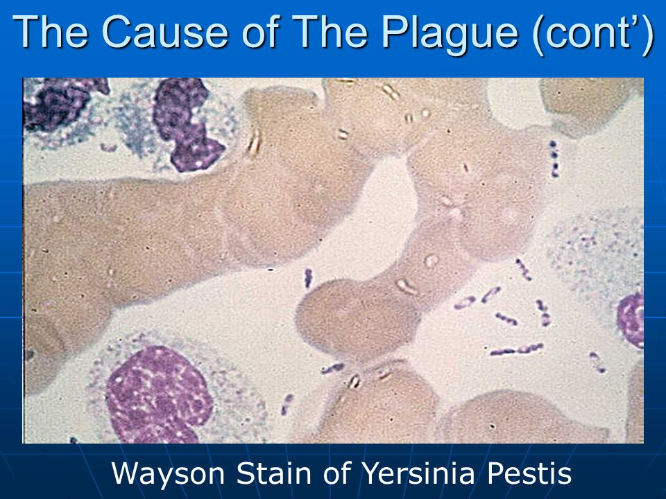 The Cause of The Plague (cont') Fluorescence antibody positively is seen as bright, intense green staining around the bacterial cell