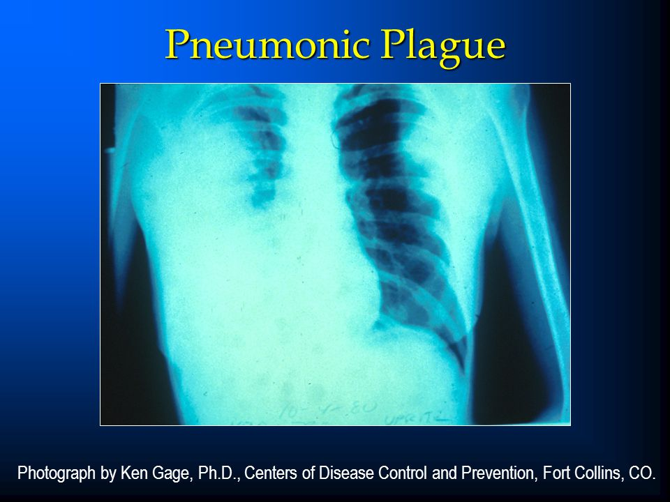 Pneumonic Plague Photograph by Ken Gage, Ph.D., Centers of Disease Control and Prevention, Fort Collins, CO.