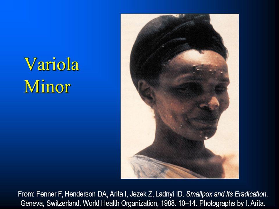 Variola Minor From: Fenner F, Henderson DA, Arita I, Jezek Z, Ladnyi ID. Smallpox and Its Eradication. Geneva, Switzerland: World Health Organization;