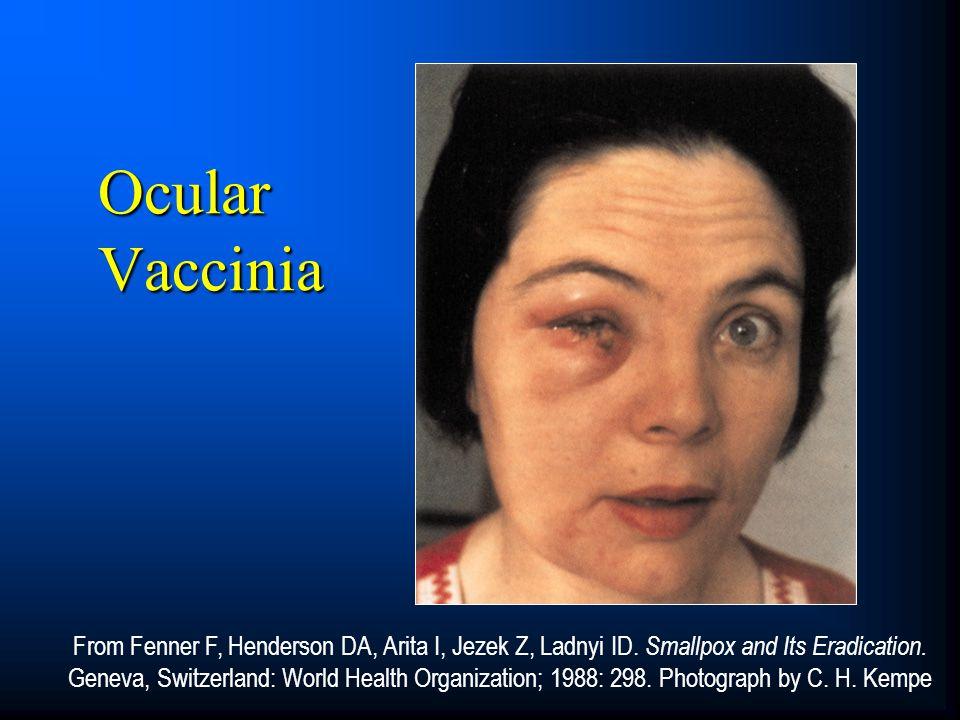 From Fenner F, Henderson DA, Arita I, Jezek Z, Ladnyi ID. Smallpox and Its Eradication. Geneva, Switzerland: World Health Organization; 1988: 298. Pho