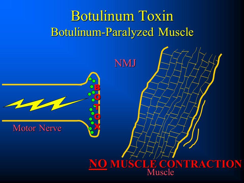Botulinum Toxin Botulinum-Paralyzed Muscle BOTOXBOTOXBOTOXBOTOX NO MUSCLE CONTRACTION NMJ Motor Nerve Muscle