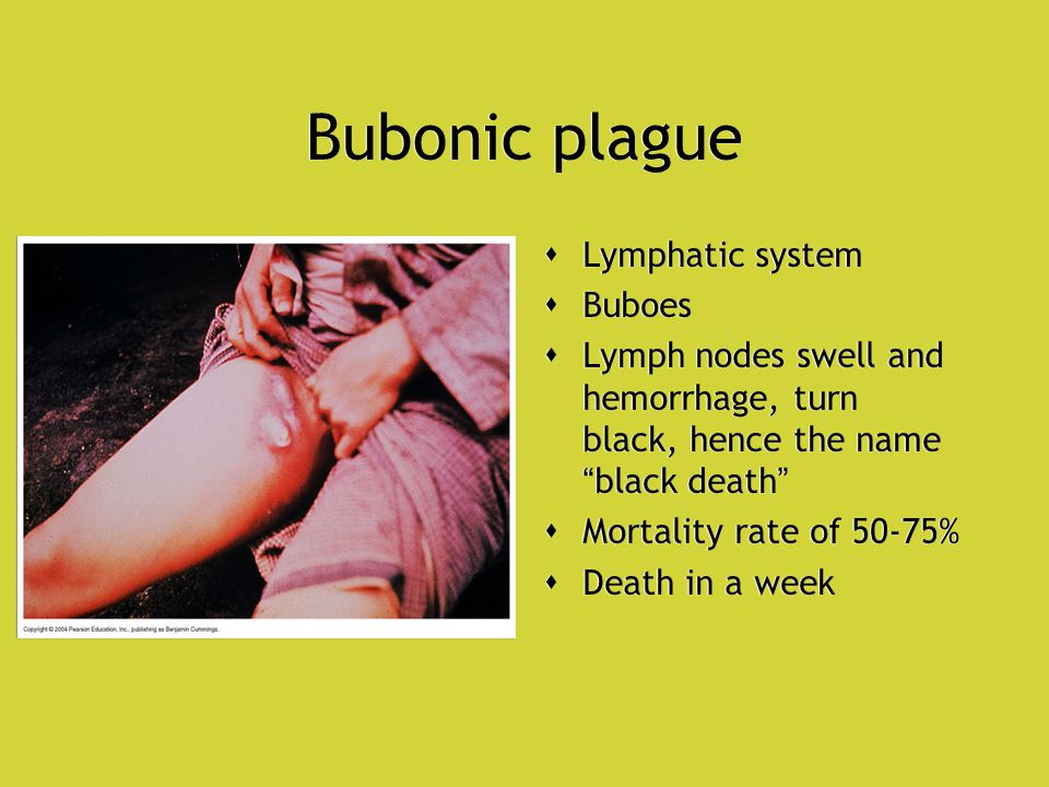 Bubonic plague  Lymphatic system  Buboes  Lymph nodes swell and hemorrhage, turn black, hence the name black death  Mortality rate of 50-75%  Death in a week