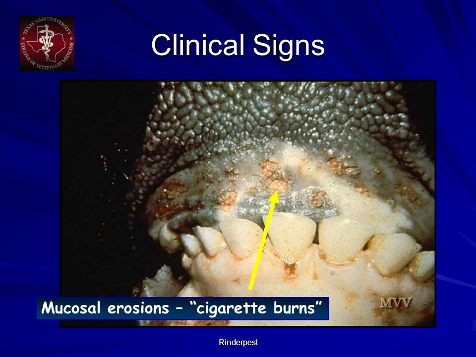 Rinderpest Mucosal erosions – cigarette burns Clinical Signs