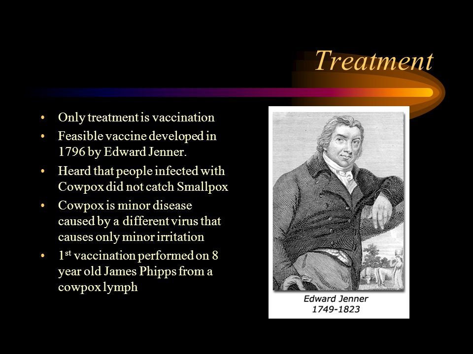 Treatment Only treatment is vaccination Feasible vaccine developed in 1796 by Edward Jenner. Heard that people infected with Cowpox did not catch Smal