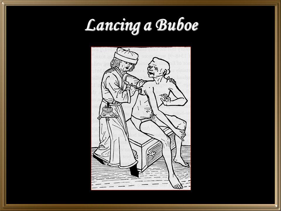 Lancing a Buboe