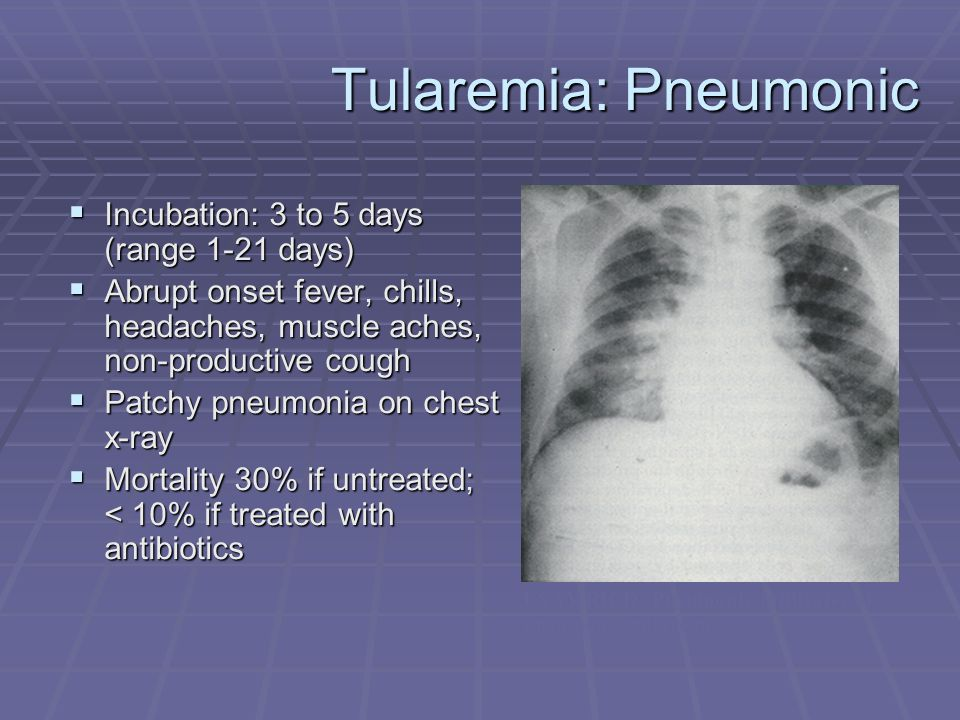 Tularemia: Pneumonic  Incubation: 3 to 5 days (range 1-21 days)  Abrupt onset fever, chills, headaches, muscle aches, non-productive cough  Patchy pneumonia on chest x-ray  Mortality 30% if untreated; < 10% if treated with antibiotics USAMRICD: Pneumonic infiltrates of pneumonic tularemia