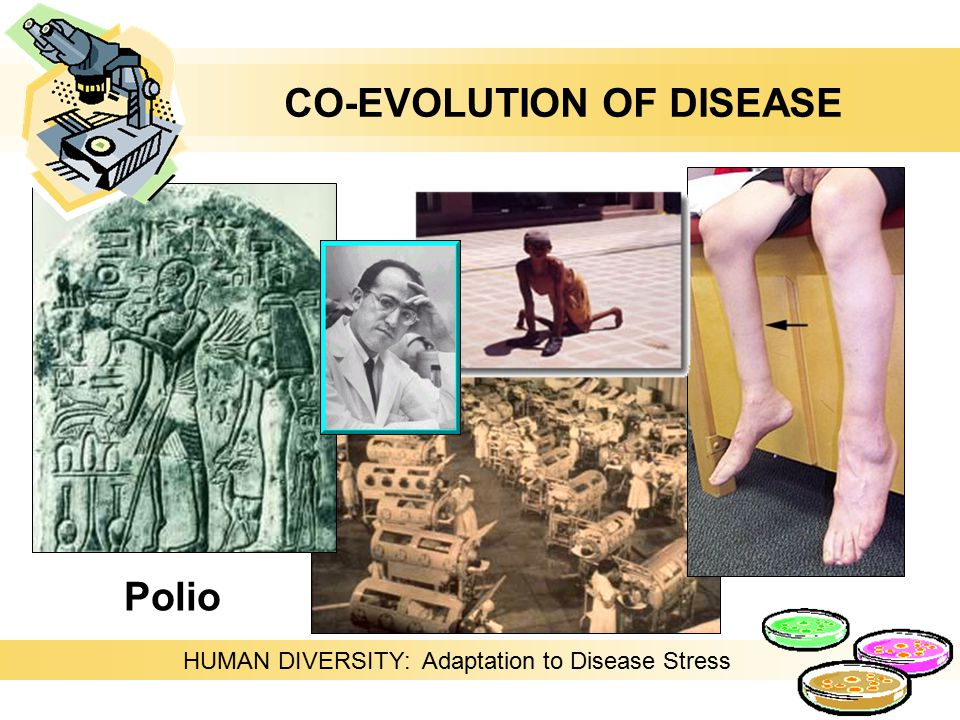 Polio HUMAN DIVERSITY: Adaptation to Disease Stress CO-EVOLUTION OF DISEASE
