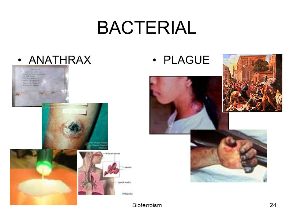 Bioterroism24 BACTERIAL ANATHRAXPLAGUE